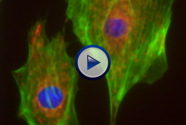 Our Cell Structure DVD first explains the difference between prokaryotic and eukaryotic cells and then explores in detail the structure and function of the major organelles found in eukaryotic cells. Examined organelles include: the nucleus, ribosomes, smooth and rough endoplasmic reticulum, the Golgi complex, lysosomes, chloroplasts, mitochondria, plastids, contractile and central vacuoles, cilia, flagella and the microtubules, microfilaments, and intermediate filaments that make up the cytoskeleton. The program concludes by looking at how cellular shape varies with cellular function. 